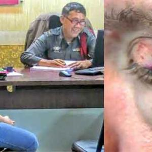 Russian beaten up by lady boy and woman in Jomtien - but Facebookposters turn on the tourist for assuming they are Thai